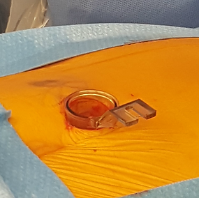 An endoscopic tube used to perform a minimally invasive lumbar decompression