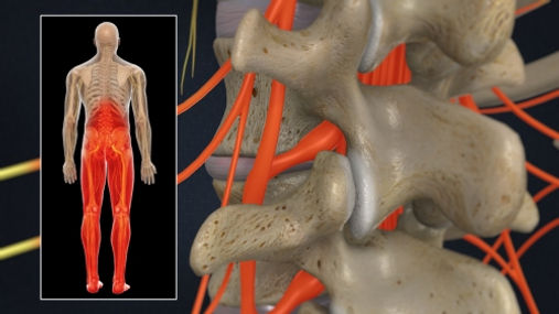 """Radiculopathy, also referred to as """"sciatica,"""" describes nerve pain in the arms or legs from spinal nerves   Dr. Benjamin Bjerke"""