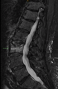 Compression Fracture; Osteoporosis; Spine Fracture