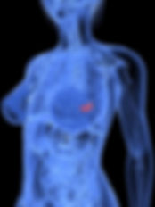 Translucent Breast Cancer.jpg