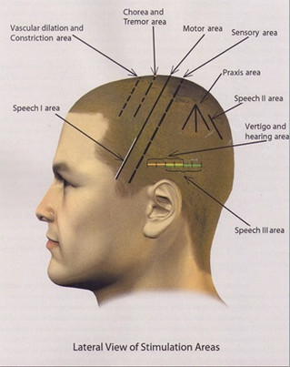New Treatment Approach - Scalp Acupuncture