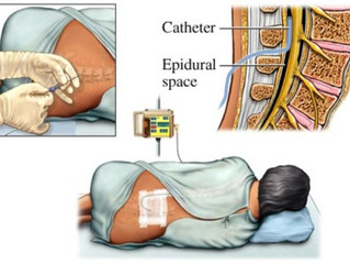 3 Tips if you are planning an Epidural