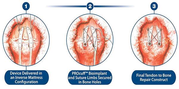 procuffbioimplant2.jpg
