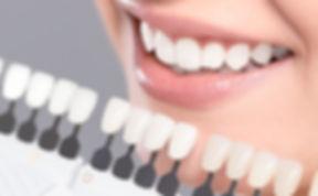 tanden.jpg