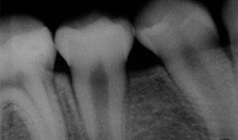 Radiografía periapical o retroalveolar, imagen completa de una pieza
