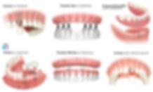 Prótesis fijas sobre implantes