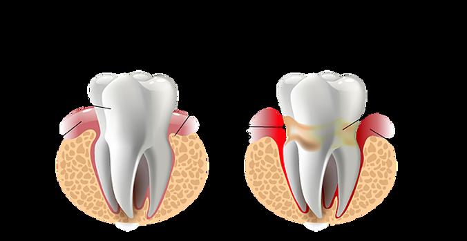 Enfermedades periodontales: Gingivitis y Periodontitis