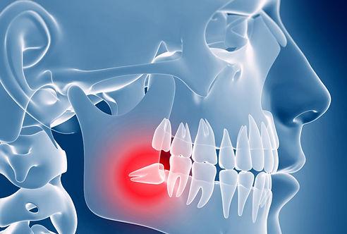 Cirugia de molares