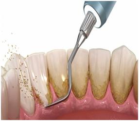 teeth-scalling.png