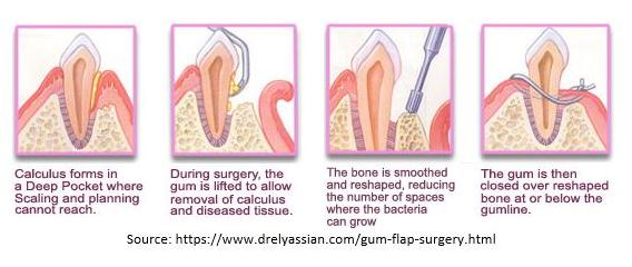 flap-surgery.png