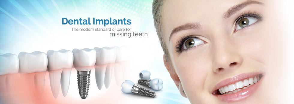 dental-implant-banner.jpg