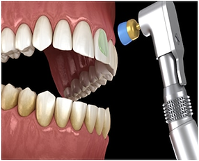 teeth-polishing.png