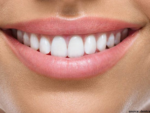 Smile Designing- Everything you need to know