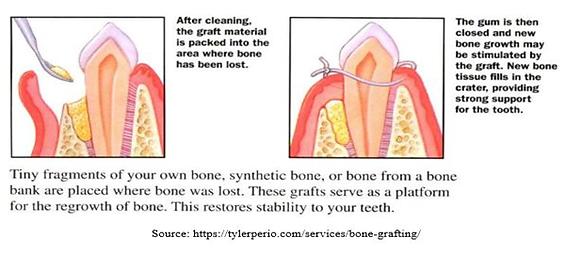 bone-grafting.png