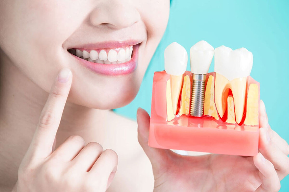 Dental Implants Take to Heal