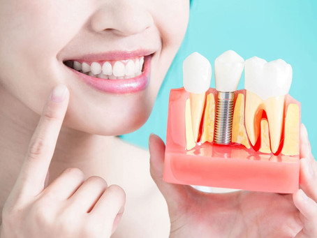 How Long Does Dental Implants Take to Heal?