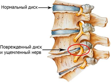 Шейный остеохондроз- профилактика и лечение