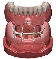 prothèse dentaire blainville