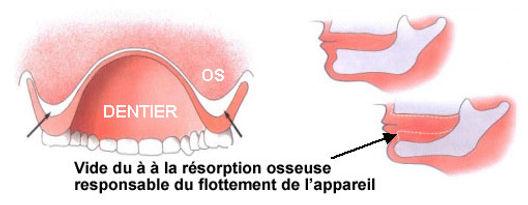 prothèse dentaire fabreville