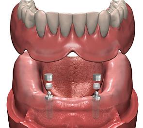 prothèse sur implants laval