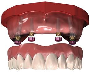 prothèse sur implants blainville