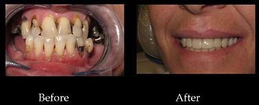 dentier blainville