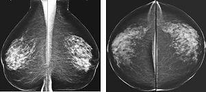 mammodigitale.jpg