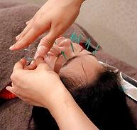 四条大宮のsky鍼灸整骨院 美容鍼・小顔矯正
