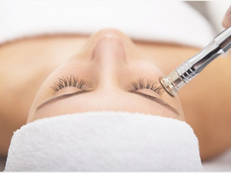 The Dirt on Microdermabrasion