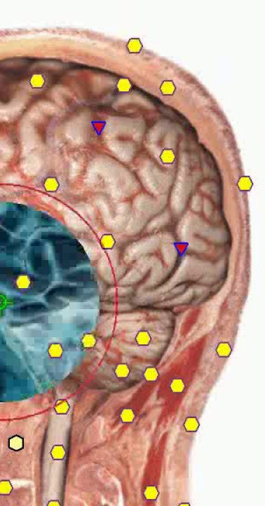 diagnostica-metatron-nls-18.jpg