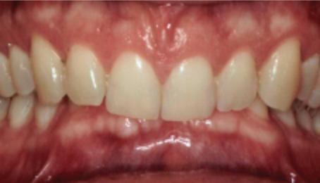 Does Medi-Cal (Denti-Cal) cover braces?