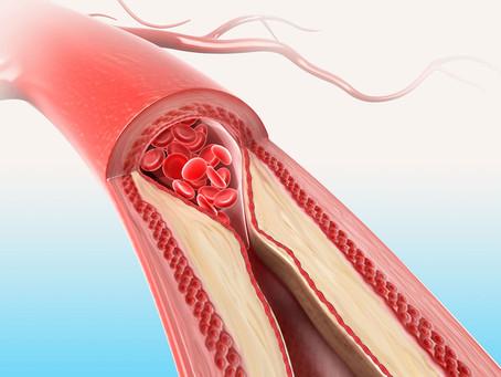 Parliamo di... Aterosclerosi