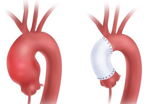 Aneurisma Aorta Ascendente, Riparazione chirurgica