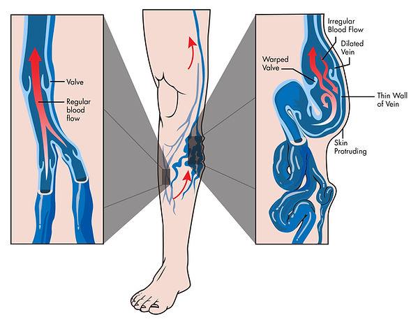 Anatomy of a healthy vein vs. Anatomy of a Varicose Vein