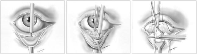 blefaroplastia-inferior.jpg