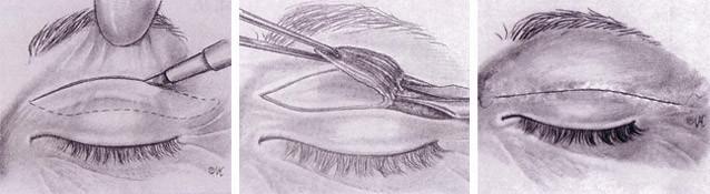 blefaroplastia-superior.jpg
