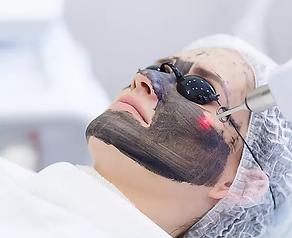 laser-for-life-carbon-treatments-1.webp