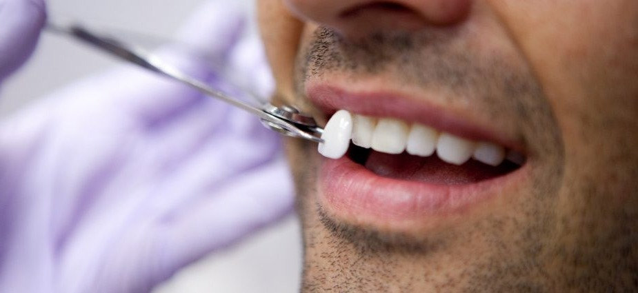 dental-veneers-min-925x425_edited.jpg