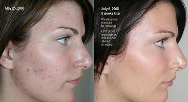 nu skin avant apres peau acneique.jpg