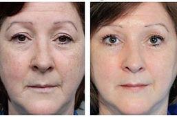 soins-visage-nuskin-anti-age avant apres
