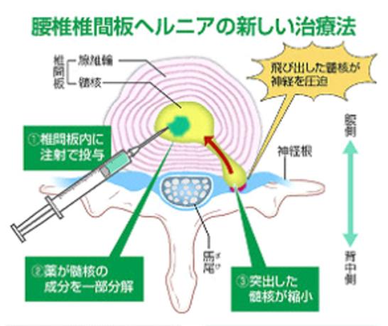 千葉白井病院 椎間板(髄核)融解術