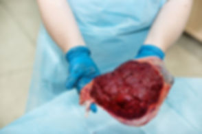 placenta-encapsulation-photo.jpg