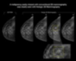 CaseStudy_2D vs 3D digital - CancerDiagn