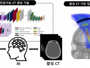 В Южной Корее разработали технологию, позволяющую получить КТ-снимки без радиационного облучения