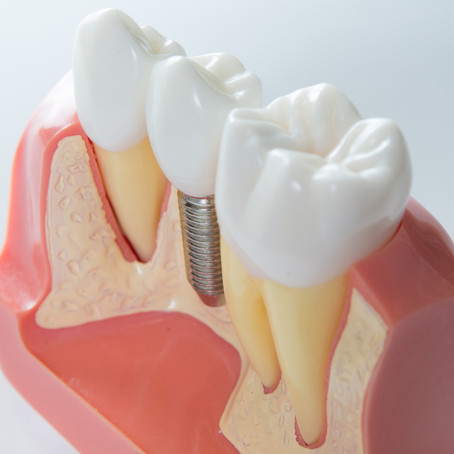 What To Expect At Your Dental Implant Appointment