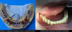 Trattamento 11 impianti mandibolari