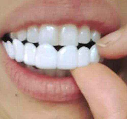 Image result for veneers