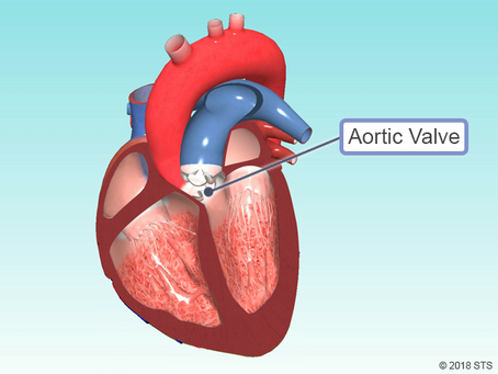 It's Medical Monday and Aortic Disease Awareness Month!