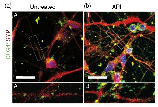 Le connessioni neuronali tra neuroni trattati con apigenina (DESTRA)molto più evidenti rispetto a quelli non trattati (SINISTRA)