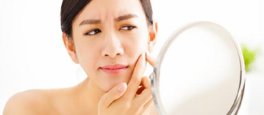 Brufoli e acne: hai mai fatto attenzione a quello che mangi?